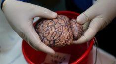 Burası bir beyin bankası