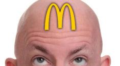 McDonald's Patatesleriyle Kelliğe Çözüm Getirildi!